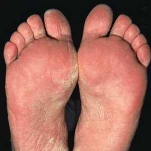 tengo hongos en los pies que me pongo